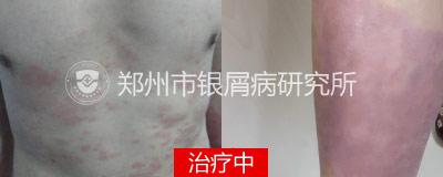 308准分子光治疗银屑病效果好吗?贵不贵?-3.jpg